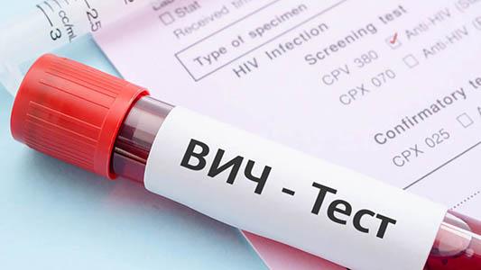 Аналіз на ВІЛ - ДНК-Лабораторія